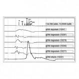Sistemas Automatizados Eletroforese Capilar GelBot Gráfico 3