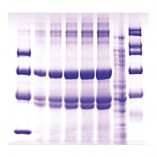 Eletroforese DNA
